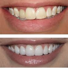 Cosmetic (whitening, veneers, crowns)