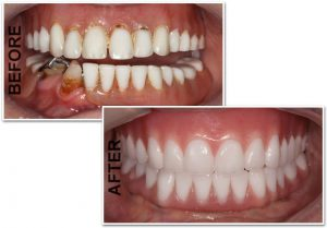 Dental-Implant-Dentures-3