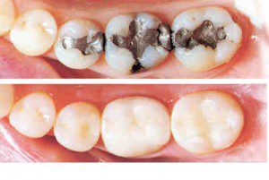 Tooth Restorations Or Dental Fillings Are One Of The Most Common Procedures